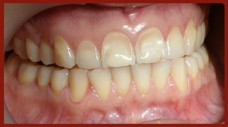 dental erosion and how to prevent it