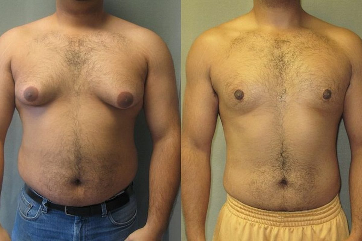 Male Breast Reduction: Treatment, Costs & Recovery