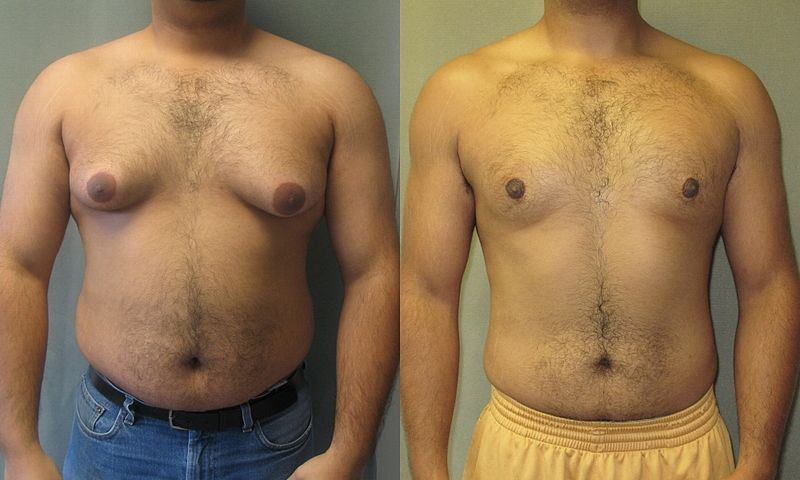 gynecomastia disease and male breast reduction treatments