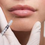 lip augmentation procedures via injection