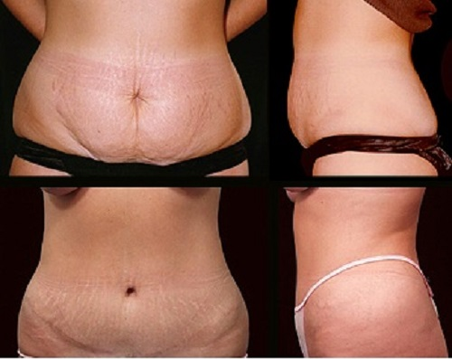 best laser stretch mark removal clinics