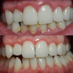 white teeth using activated charcoal teeth treatment