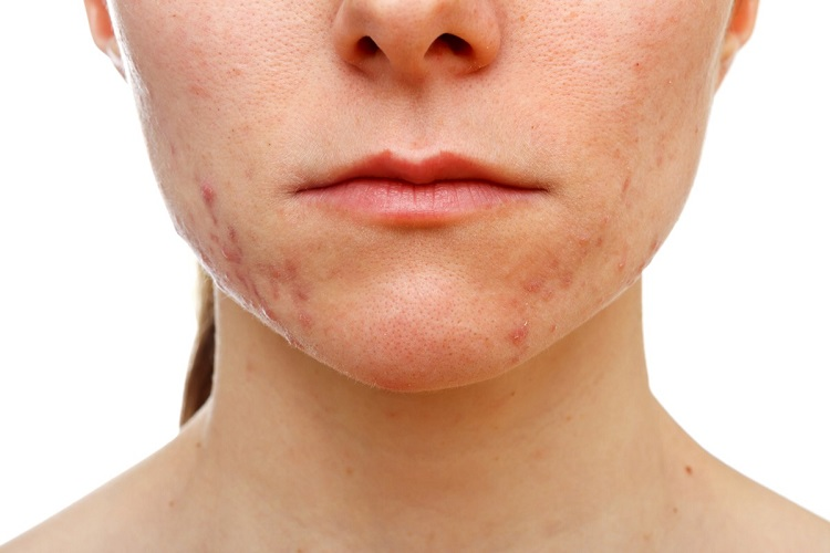a young woman with pimples on her face