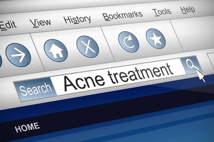 searching for acne treatment online