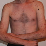 chest acne and skin problems