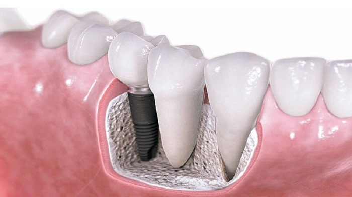a virtual sketch of a dental implant