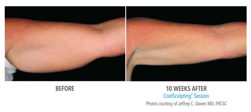 Coolsculpting Before and After Arms Albuquerque