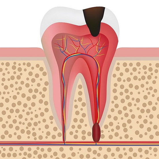 the illustration of an infected tooth