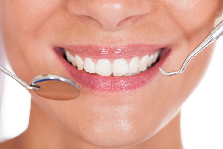 a woman's smile with healthy teeth