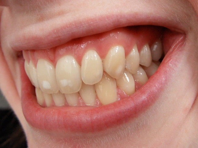 yellow stained teeth