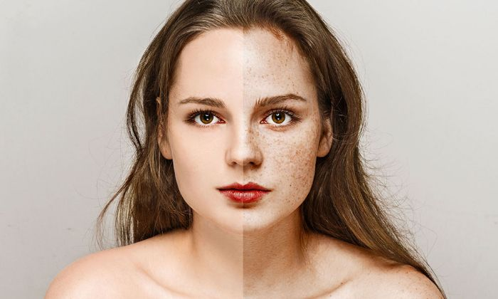 Freckle Removal Before and After