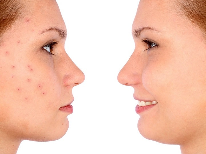a girl with acne prone skin