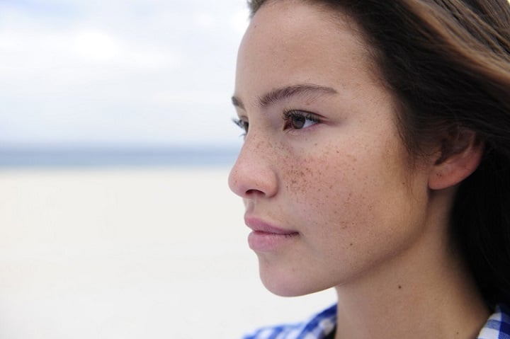 a woman with freckles on her face
