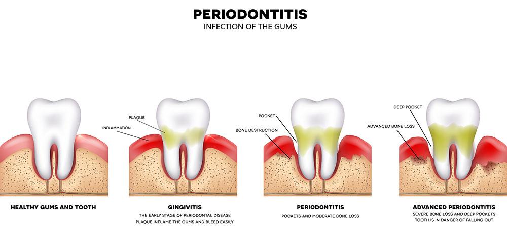 a schematic representation of gum diseases