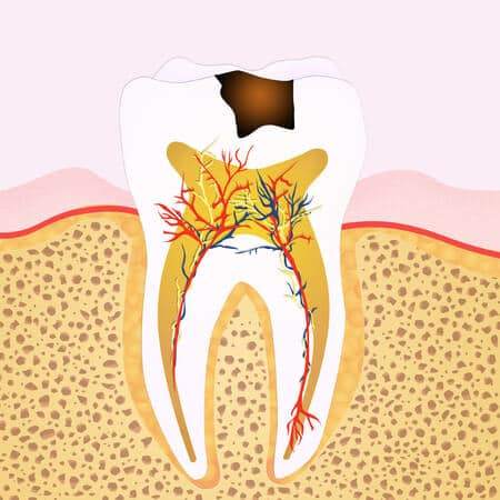 the graphic sketch of a tooth