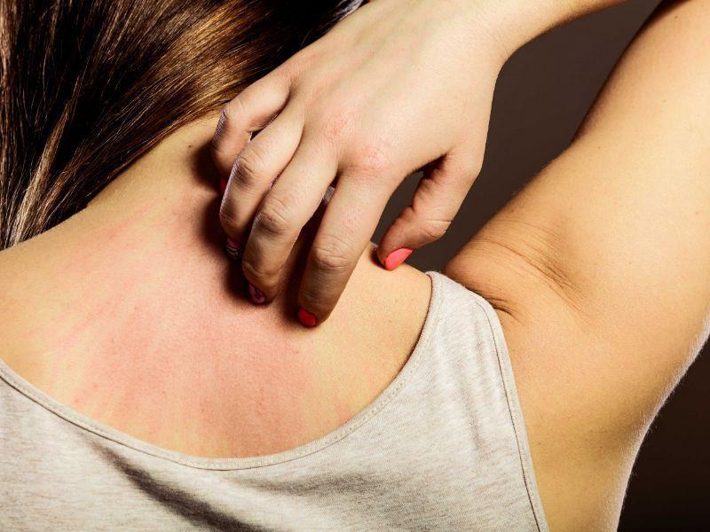 Winter Eczema Treatments