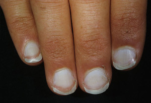 white nail beds