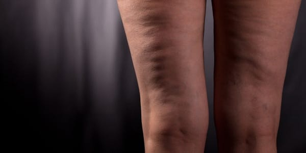 Woman having cellulite on her legs