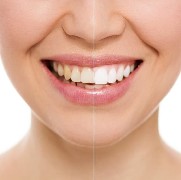 Remove teeth stains by undergoing professional cleaning.