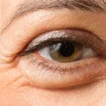 A puffy eye