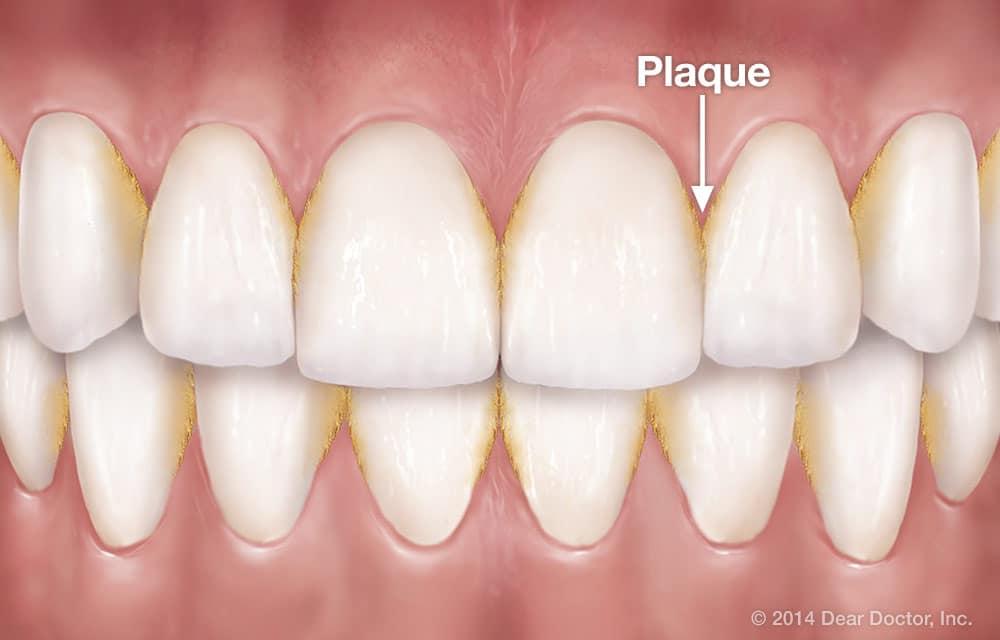 Plaque buildup on teeth