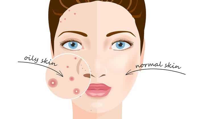 illustration oily skin versus normal skin