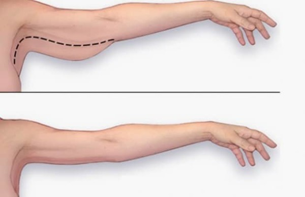 Learn how to lose arm fat in 2 easy steps according to professionals ccuart Choice Image