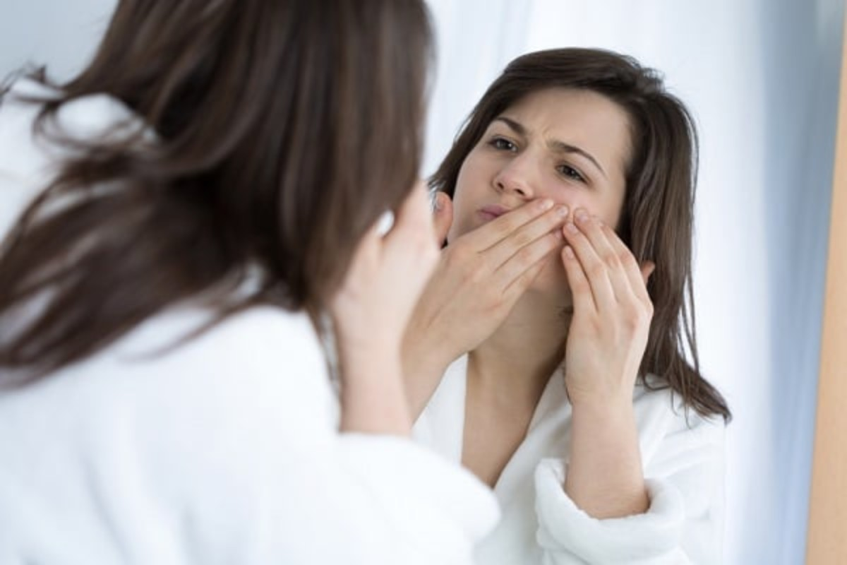 5 Flawless Tips to Cover-up Pimples