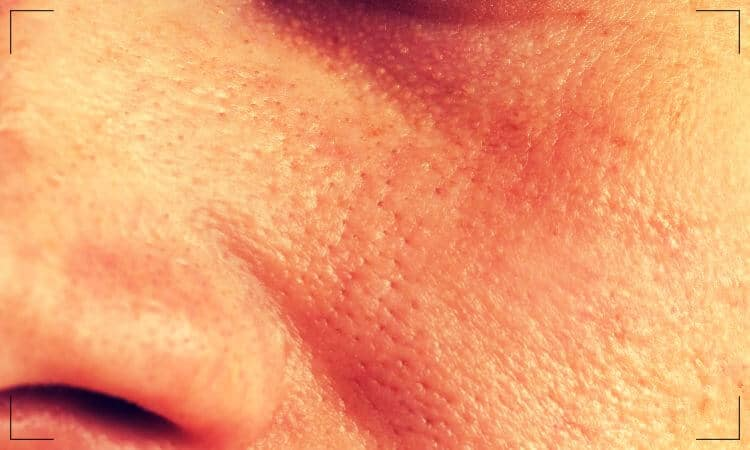 Close up of oily face skin