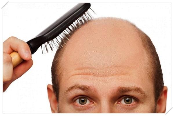 what is microneedling hair loss
