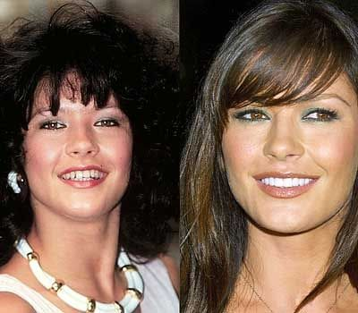 how do celebrities get straight teeth catherine zeta jones