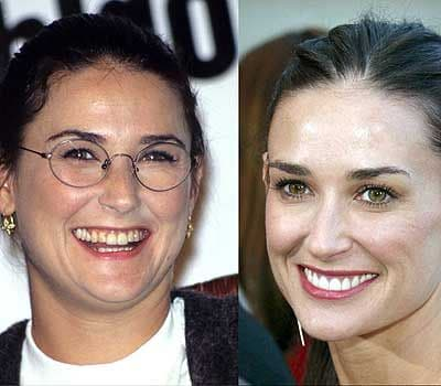 how do celebrities get straight teeth demi moore