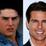 how do celebrities get straight teeth tom cruise