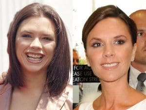 how do celebrities get straight teeth victoria beckham