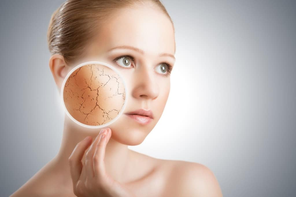 how to determine you have dry skin in three easy ways