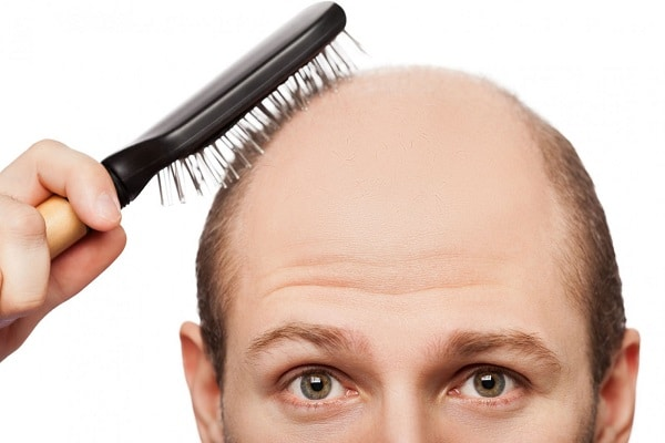 unexpected reasons for hair loss in men