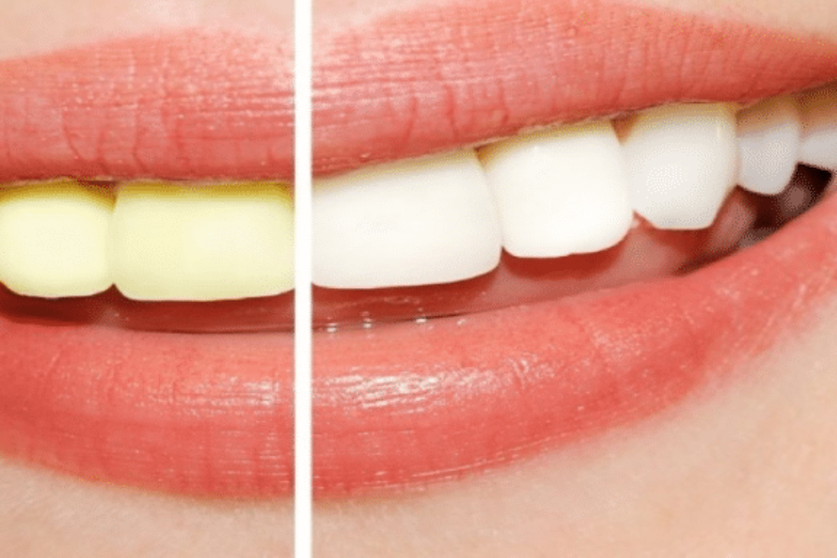 How Does Teeth Whitening Mouthwash Work?