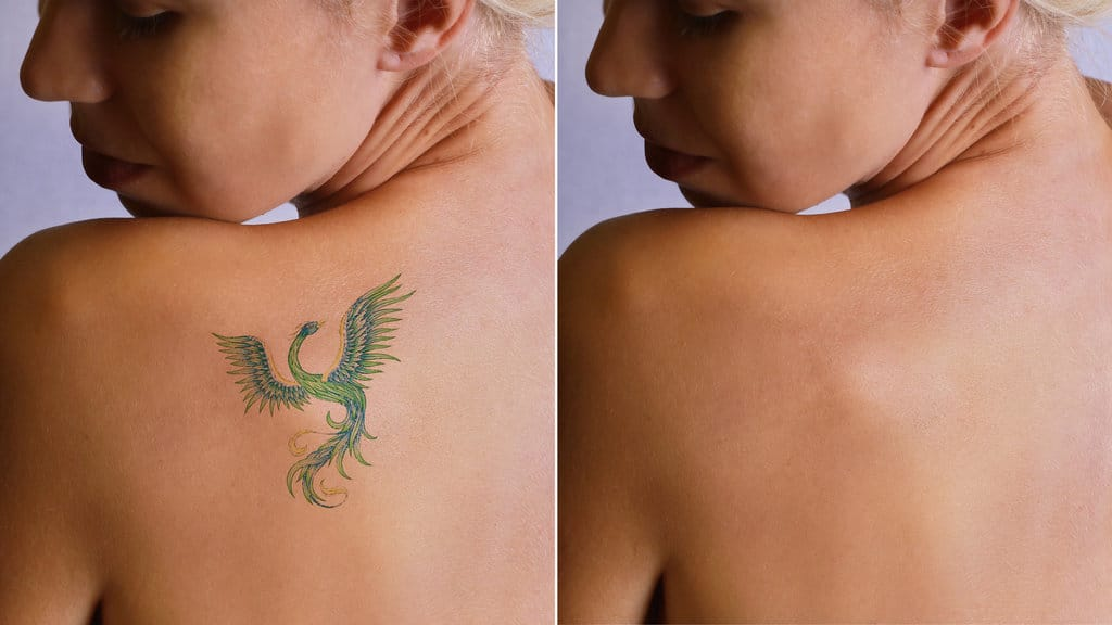 Does Laser Tattoo Removal Actually Work?