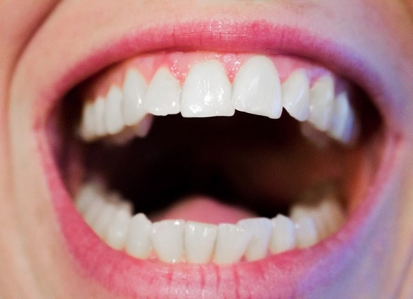 Mouth with white teeth