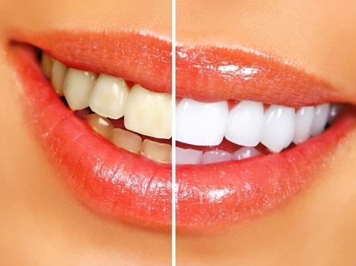 half white, half yellow smile