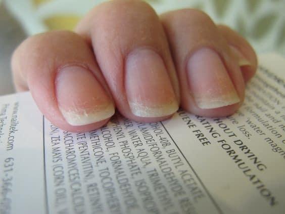 flaky nails