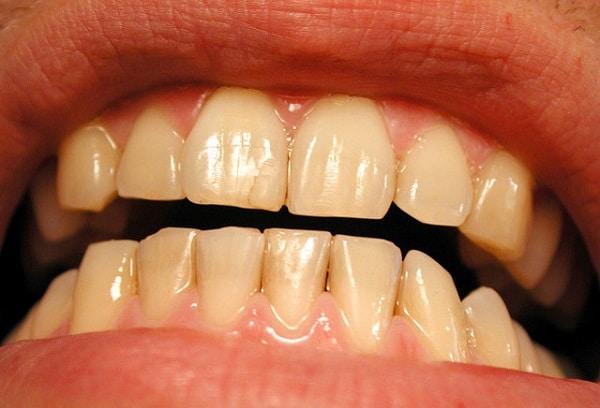 someone's teeth