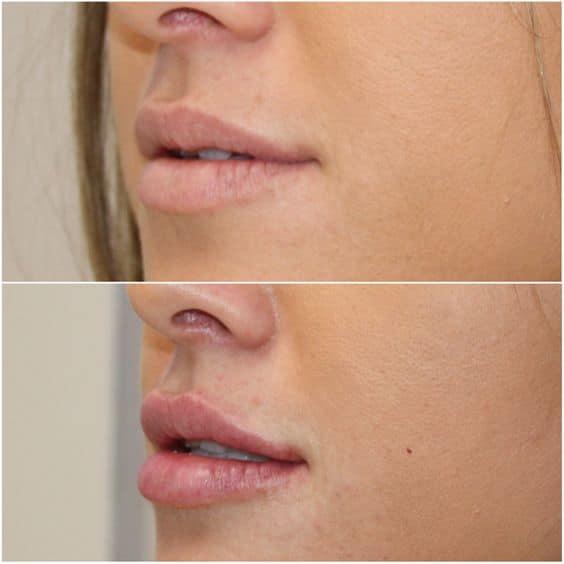 effects of dermal fillers