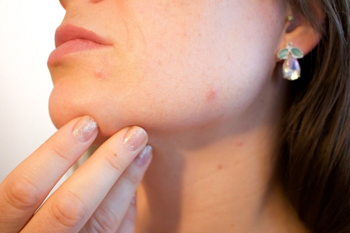 4 Home Remedies to Try and Get Rid of Whiteheads