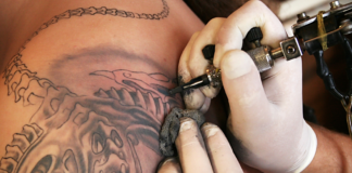 Removing Infected Tattoo from Body