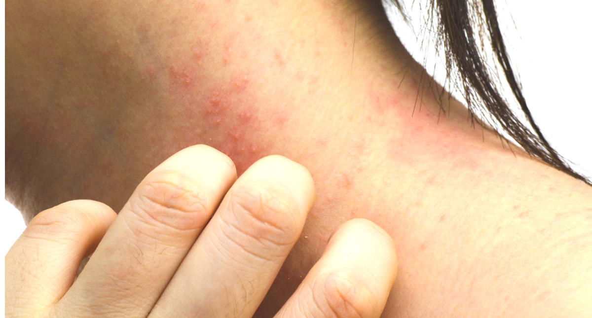 8 Home Treatments To Specifically Fight Your Worst Eczema Flare Up