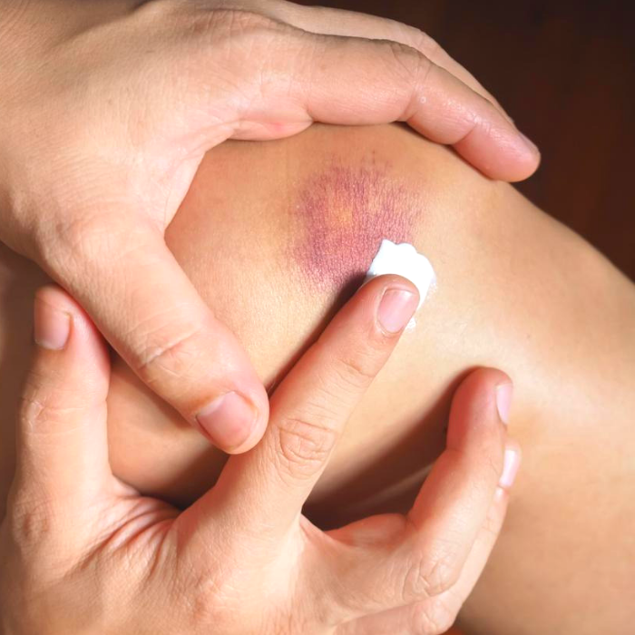 essential oil for bruises, black eye treatment, stages of bruising, how to make bruises go away, how to reduce bruising, how to make swelling go down, how long does a bruise last, deep tissue bruise, bruising after blood drawn, how long does it take for a bruise to heal, anemia bruising, bruised noise, how to get rid of brusies in 24 hours, how to heal black eye, get rid of bruises, bruised lips, bruised tongue, black eye remedy, how to heal faster, how to heal bruises faster, bruise aesthetic, cream for bruises, essential oils for bruising, home remedies for bruises, bruise colors, green bruise, blood bruise, black bruise, bruising easily on legs, bruises on arms,