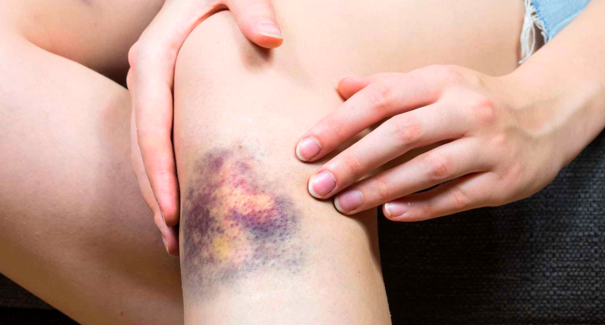 How to Get Rid of Bruises Fast Using Natural Products