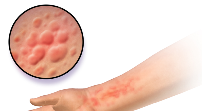 800px-Urticaria - red dots on skin